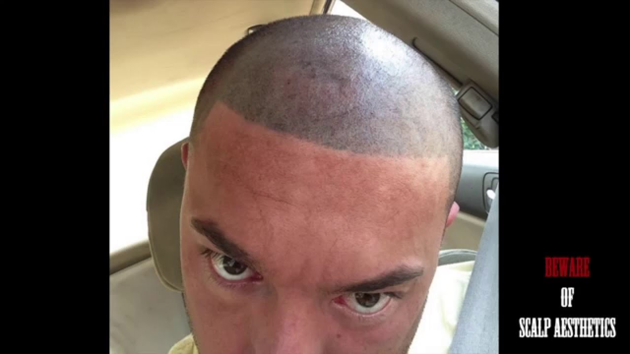 Beware failed bad hair transplant smp scalp for Hair tattoo cost
