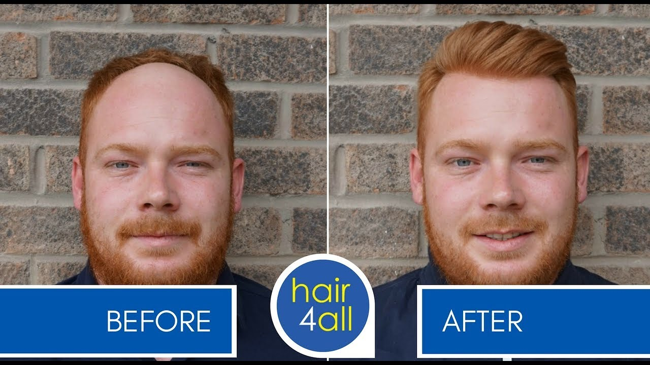 Before Amp After Hair System Non Surgical Hair