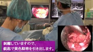 腰部脊柱管狭窄症(MEL) 手術と症例解説【岩井整形外科内科病院】