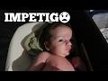watch he video of IMPETIGO! :(