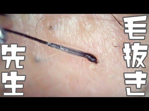 007 1時間の高倍率毛抜き Doctor Tweezers Remove Hair Microscope 毛抜先生 닥터 족집게