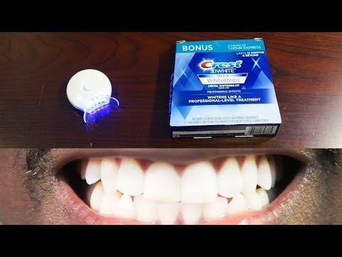 How To Whiten Teeth Easy! • AuraGlow LED Light & Crest 3D Whitestrips