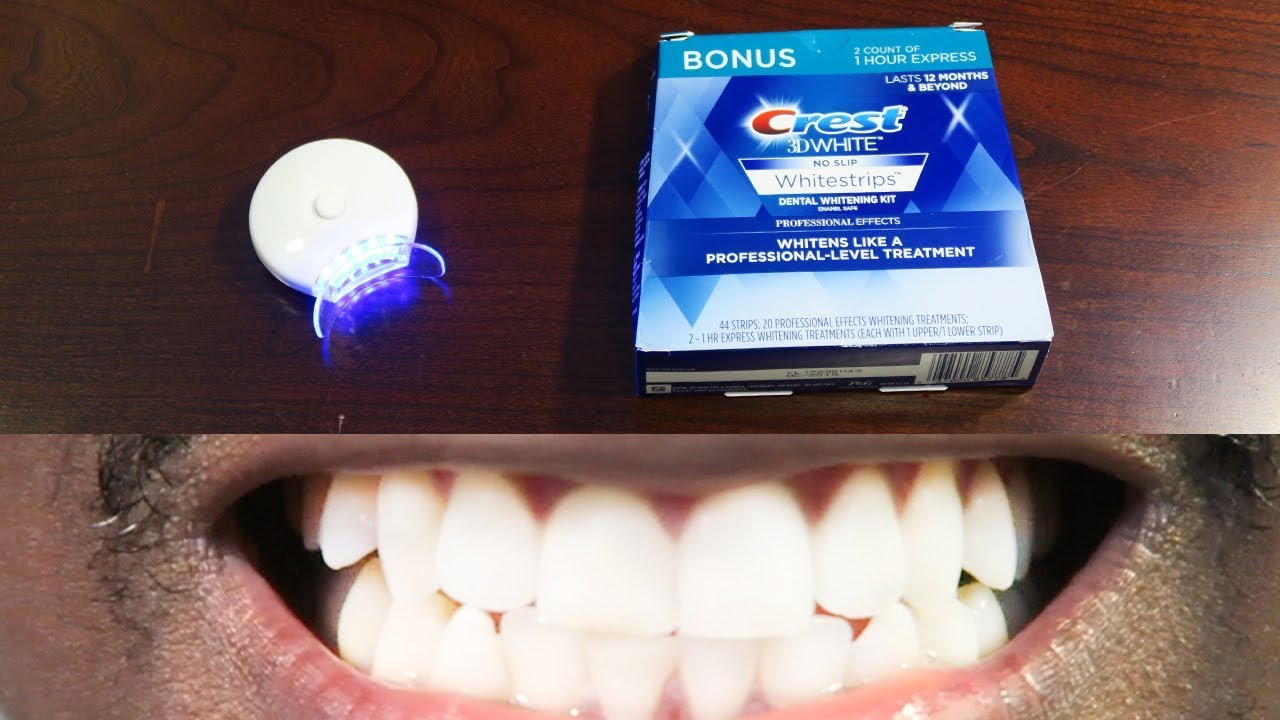 How To Whiten Teeth Easy Auraglow Led Light Crest 3d