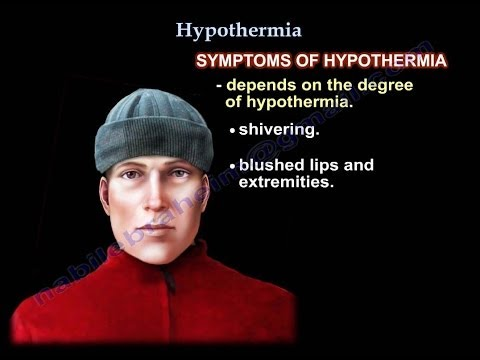 Hypothermia , UPDATE - Everything You Need To Know - Dr. Nabil Ebraheim