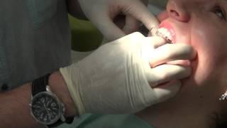 видео выравнивание зубов