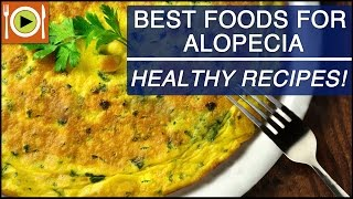 Foods for Alopecia | Including Proteins, Biotin & Zinc Rich Foods