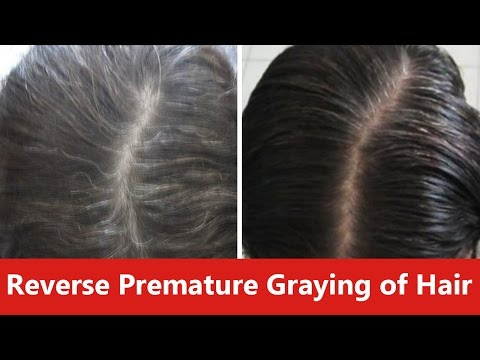 How to Reverse Premature Graying of Hair Naturally