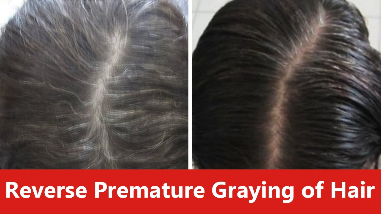 How To Reverse Premature Graying Of Hair Naturally Youtube