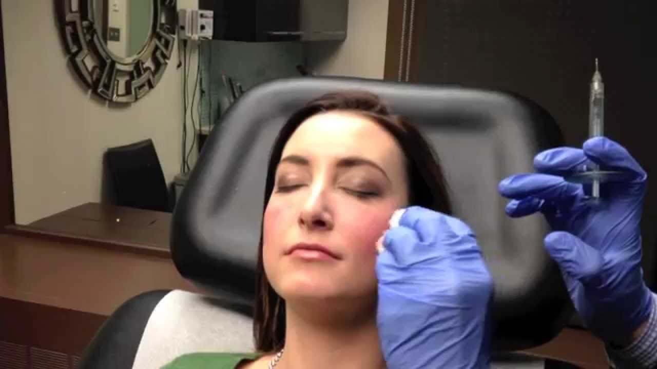 Juvederm VOLUMA Instant Cheek Augmentation in Chevy Chase, MD - Dr  Naderi