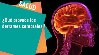 Un aire ¿Puede derrame embolia cerebral? de causar la