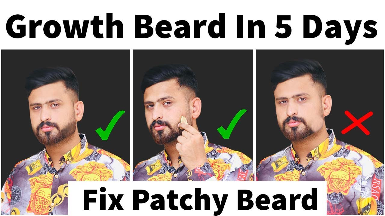 Naturally Way To Growth Beard & Grow Patchy Beard Very Fast   How To Fix Patchy Beard Fast