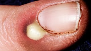 Creamy White Milk Under My Fingernail!!  (Bonus Great Sleep)