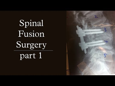 Spinal Fusion Surgery | Pt.1