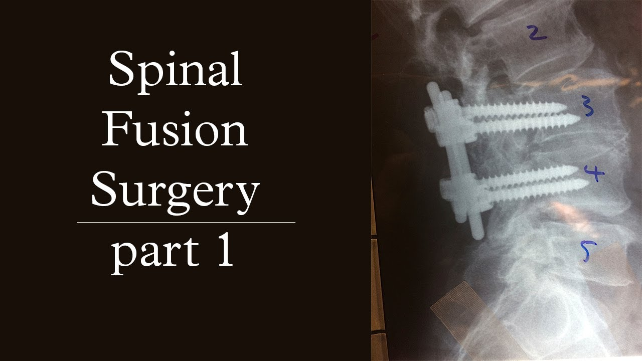 Download Spinal Fusion Surgery | pt.1