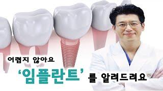 병원가기 전에 꼭 보고가세요!! 치과의사가 알려주는 임플란트의 모든 것!!!