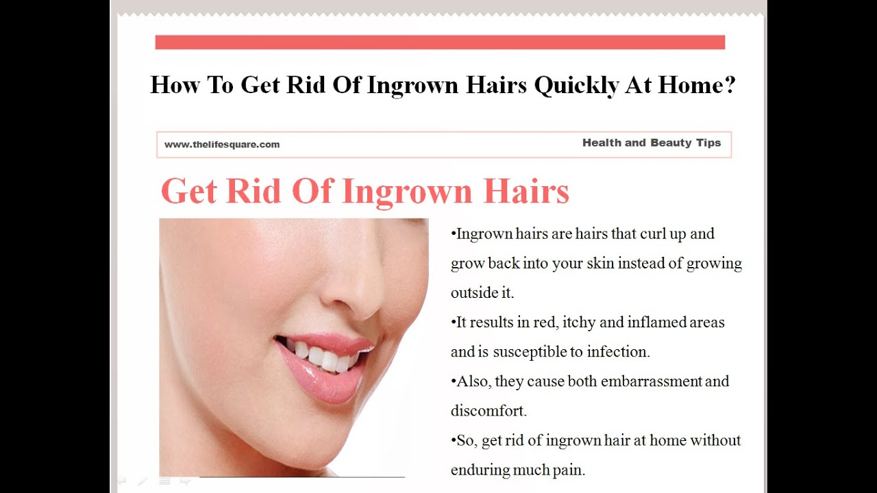 How To Get Rid Of Ingrown Hairs Quickly At Home