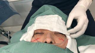 4時間に及ぶ目のクマ切開脂肪摘出と脱脂手術してきました
