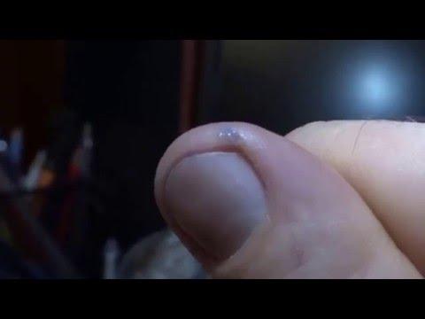 Почему трескаются пальцы на руках возле ногтей