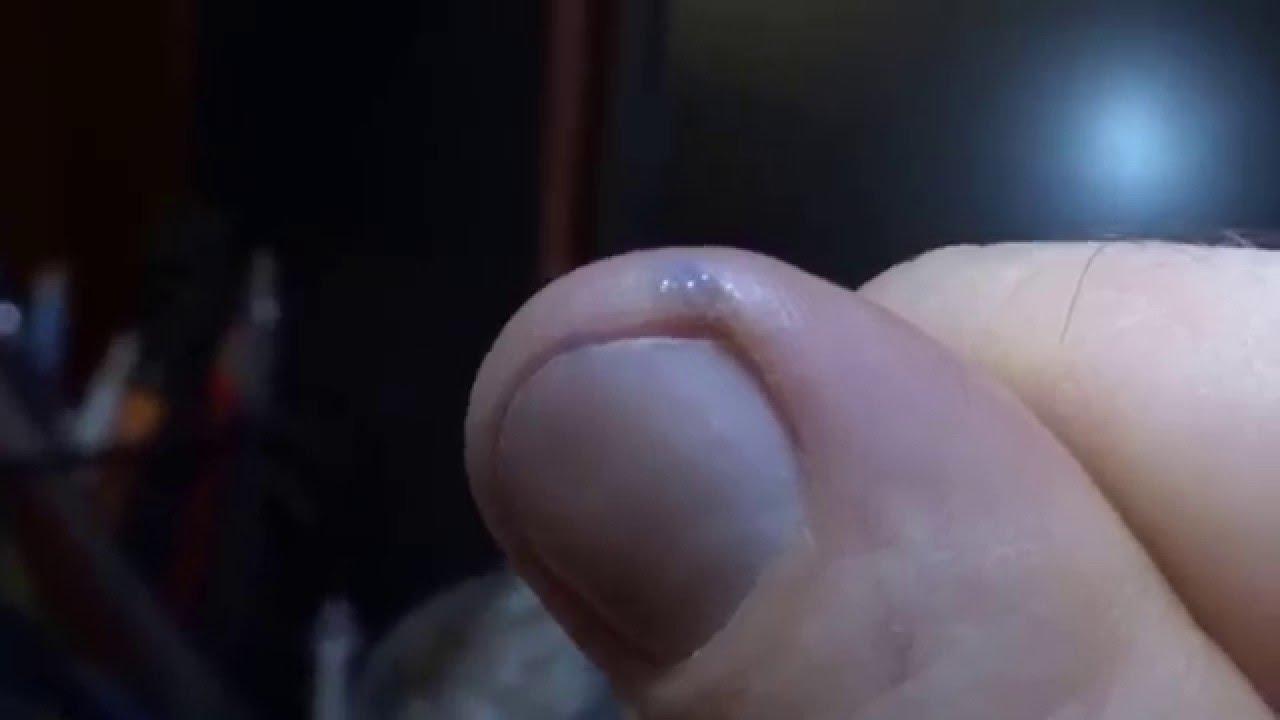 Как сделать трещину в руке фото 818