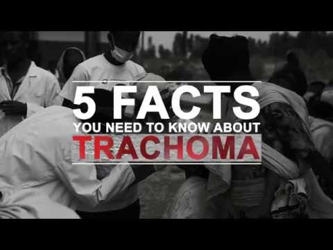 5 facts you need to know about trachoma