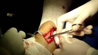 Cirurgia no meu pe esquerdo