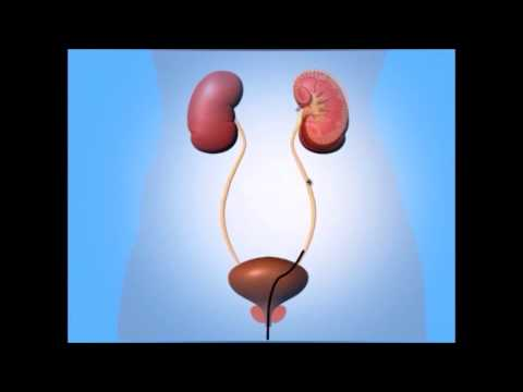 Kidney Stone Treatment