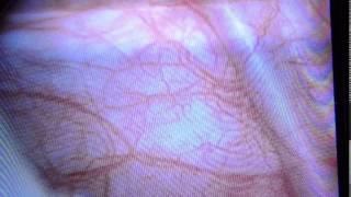 Ureterocele. Cystoscopic deroofing by Dr. Tariq Akhtar Khan.