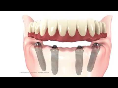 all-on-4-dental-implant---fms-dental-hospital