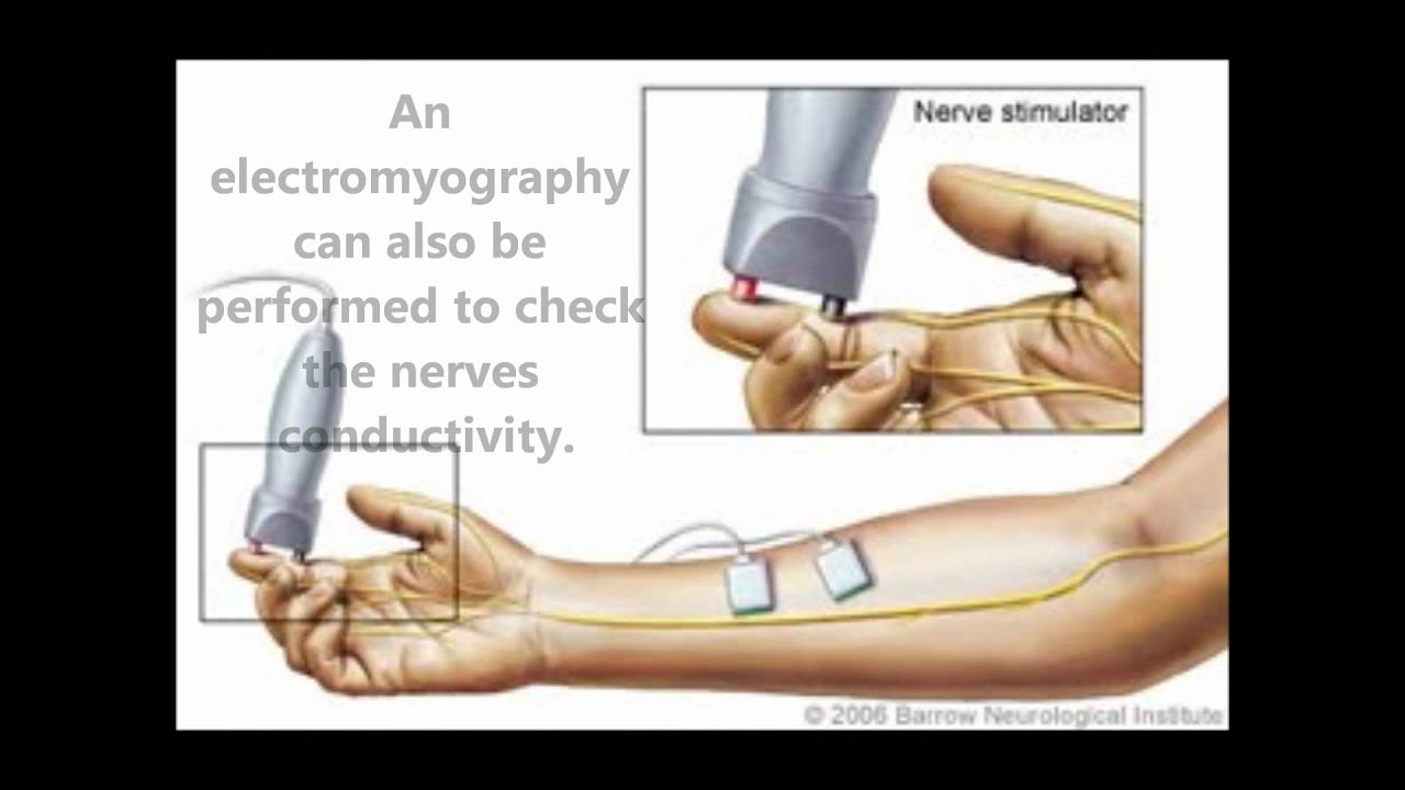 Guillain-Barre Syndrome - Physiopedia