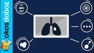 hogyan kell leszokni a dohányzásról és al dohányzási tippek a dohányzásról való leszokáshoz