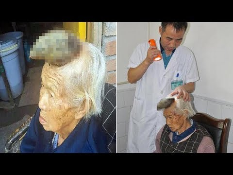 Woman has 5 inch HORN: 87 y.o woman diagnosed it as a Cutaneous Horn growing out of her head