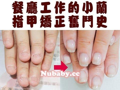 餐飲業的指甲矯正-指甲破壞超短也能變健康