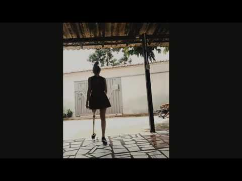 Lak amputee girl walking with her new prosthetic leg