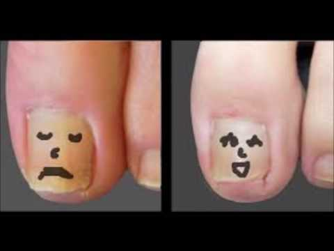 How To Remove A Toenail With Nail Fungus – Rubbing Alcohol Toenail Fungus