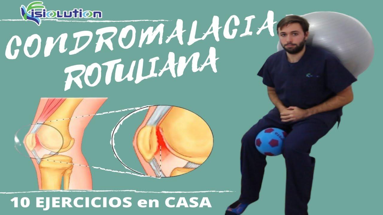 Condromalacia Rotuliana 10 Ejercicios Y Recomendaciones Fisiolution Youtube