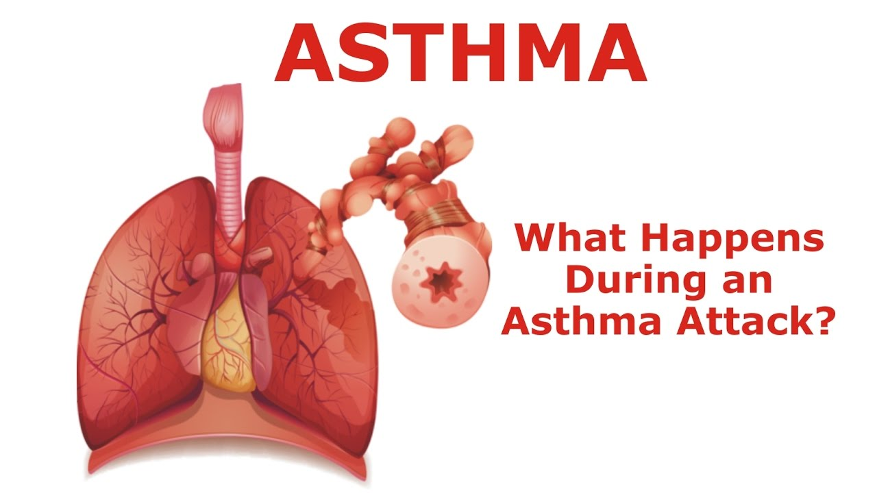 Asthma - What Happens During an Asthma Attack? - YouTube
