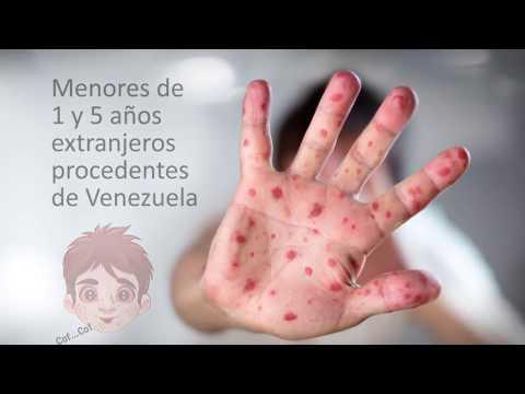 CAMPAÑA CONTRA EL SARAMPION ENTREVISTA DR BITAR