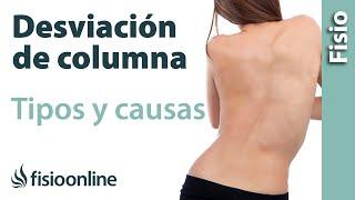 Escoliosis o desviación lateral de columna. Que es, causas, tipos...
