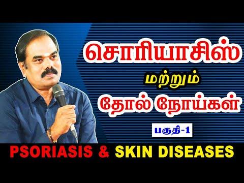 Psoriasis & Skin Diseases  சொரியாசிஸ் என்ற கொடிய நோயை விரட்ட முடியுமா ?(PART -1)