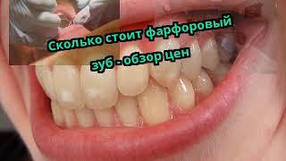Сколько стоит фарфоровый зуб - обзор цен