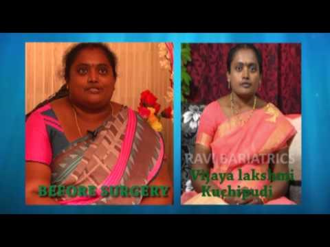 Best Bariatric Surgery results by Dr.Ravikanth kongara Hyderabad , Vijayawada