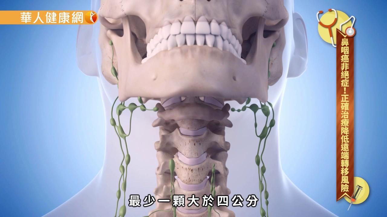 【華人健康網】鼻咽癌非絕癥!正確治療降低遠端轉移風險 - YouTube