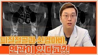 사각턱 수술 : 피질절골과 신경마비, 연관이 있다고?