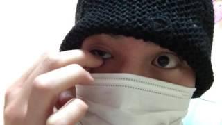 閲覧注意  義眼をはずしてみた  Removing and Replacing my prosthetic eye