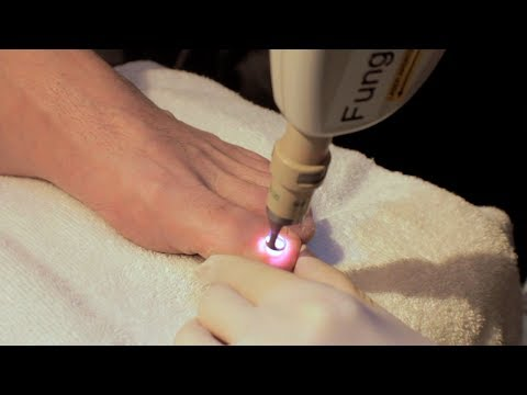 Laser Treatment of Toe Nail Fungus