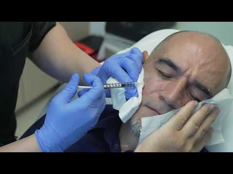 Silicone Injections for Volume Loss (Cheeks) | Beverly Hills, CA