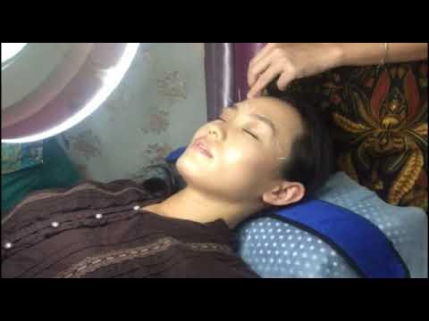 Akupuntur wajah