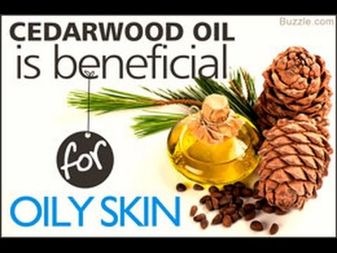 cedarwood-oil-benefits