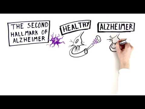 Alzheimer's Disease: The Basics