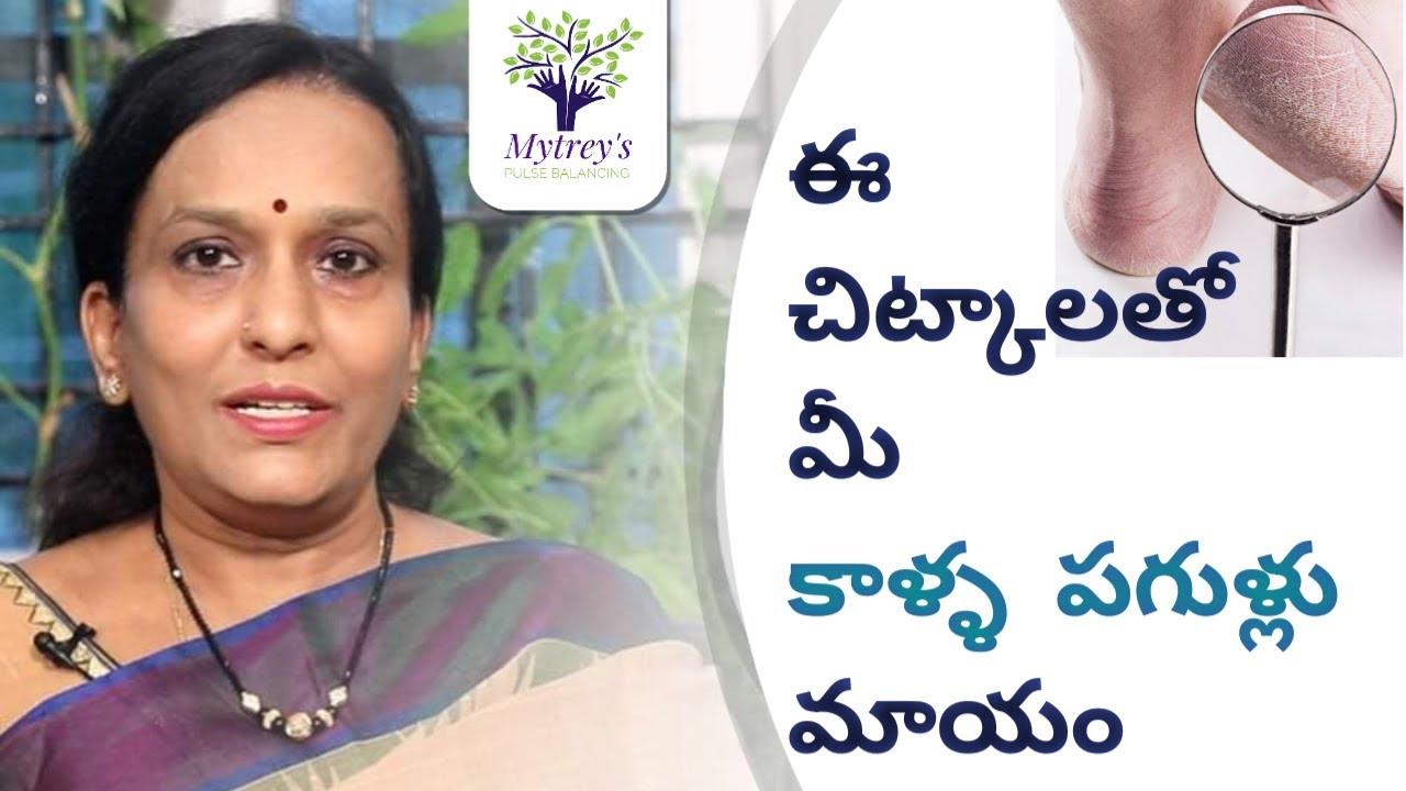 కాళ్ళ పగుళ్ళు | Get Rid of Cracked Heels Permanently|Pulse Balancing | Dr. L Umaa Venkatesh